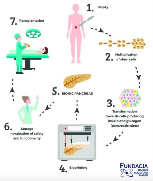 pancreas bionic